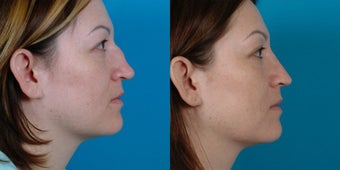 29-year-old woman treated with Rhinoplasty. after 3287951