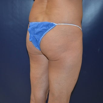 45-54 year old woman treated with Brazilian Butt Lift This patient presented with sagging of her buttocks as well as complaints of too small of
