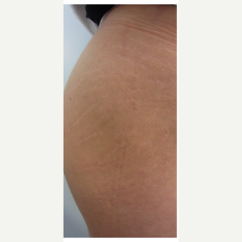 25-34 year old woman treated with 3 treatments of Infini RF