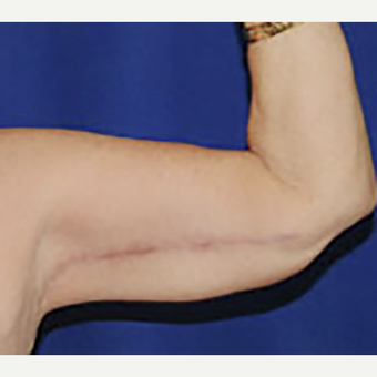 45-54 year old woman treated with Arm Lift after 3334055