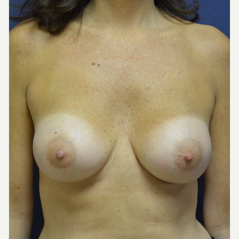 45-54 year old woman treated with Breast Implant Revision before 3128781