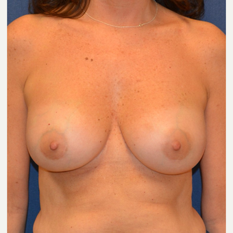 45-54 year old woman treated with Breast Implant Revision after 3128781