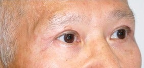 65-74 year old man treated with African American Rhinoplasty after 3264429