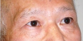 65-74 year old man treated with African American Rhinoplasty before 3264429