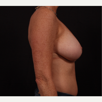 45-54 year old woman treated with Breast Reduction before 3695872