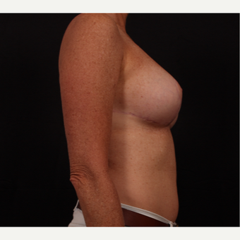 45-54 year old woman treated with Breast Reduction after 3695872