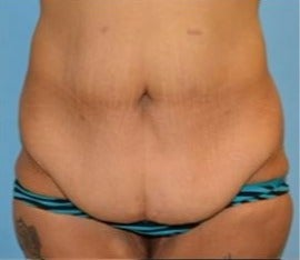 35-44 year old woman treated with Tummy Tuck before 3482917