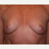 35-44 year old woman treated with Breast Implants before 3299910