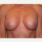 35-44 year old woman treated with Breast Implants after 3299910