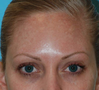 Fraxel Re:Pair treatment of Melasma