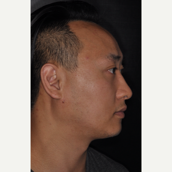 35-44 year old man treated with Nose Surgery 8 months post-op after 3500070