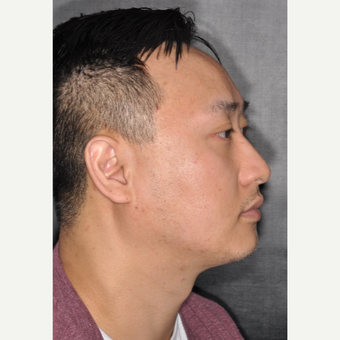 35-44 year old man treated with Nose Surgery 8 months post-op before 3500070