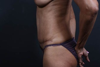 65 year old female underwent tummy tuck revision 877925