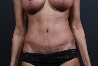 65 year old female underwent tummy tuck revision