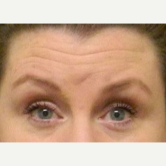 35-44 year old woman treated with Botox before 3234286