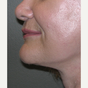 55-64 year old woman treated with Facelift after 3030510