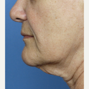 55-64 year old woman treated with Facelift before 3030510