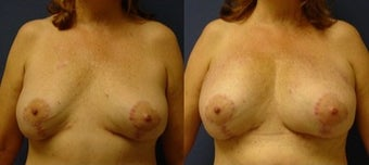 55-64 year old woman treated with Fat Transfer