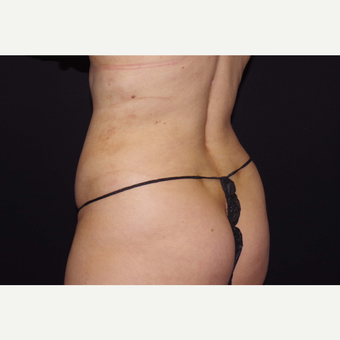 25-34 year old woman treated with Liposuction after 3055067
