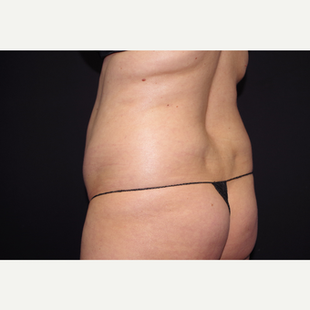25-34 year old woman treated with Liposuction before 3055067