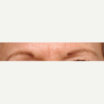 56 year old woman treated with FUT Eyebrow Transplant before 1995001