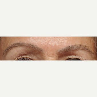 56 year old woman treated with FUT Eyebrow Transplant after 1995001