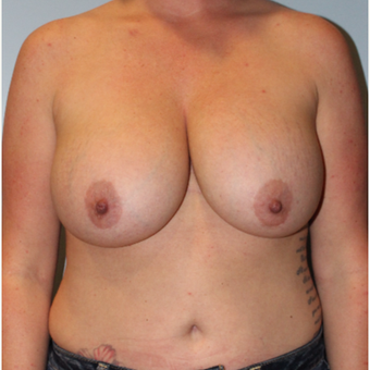 25-34 year old woman treated with Breast Implant Removal