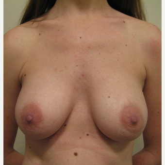 25-34 year old woman treated with Breast Augmentation after 3115169