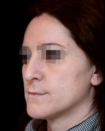 25-34 year old woman treated with Rhinoplasty before 3204736