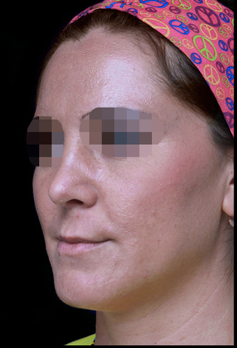25-34 year old woman treated with Rhinoplasty after 3204736