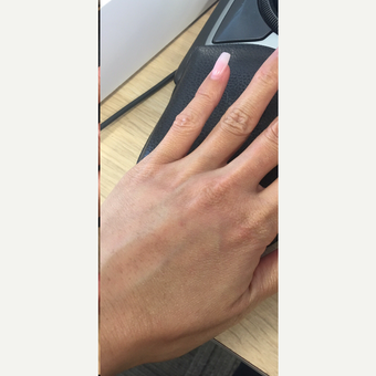35-44 year old woman hands treated with Radiesse after 3305966