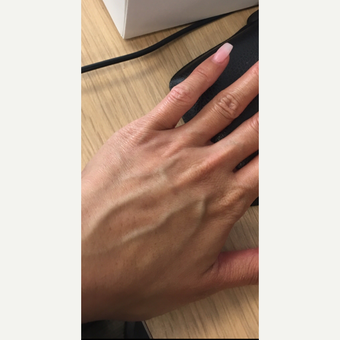 35-44 year old woman hands treated with Radiesse before 3305966
