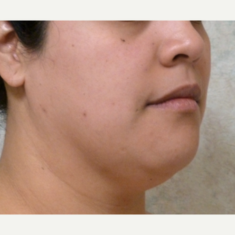 25-34 year old woman treated with Chin Liposuction before 3704060