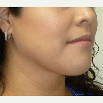 25-34 year old woman treated with Chin Liposuction after 3704060