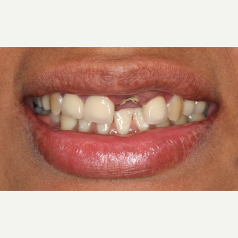 25-34 year old woman treated with Tooth Repair before 2902256