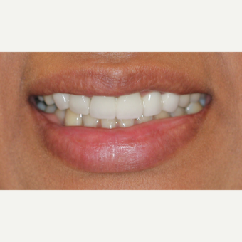25-34 year old woman treated with Tooth Repair after 2902256