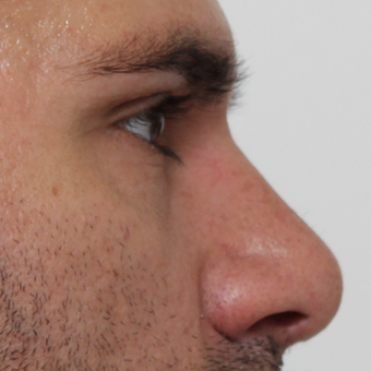 35-44 year old man treated with Rhinoplasty after 3544954