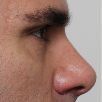 35-44 year old man treated with Rhinoplasty before 3544954