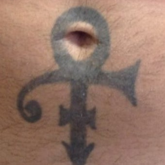35-44 year old man treated with Tattoo Removal before 1579263