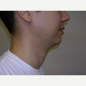 25-34 year old man treated with Kybella before 2258437