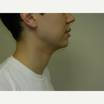 25-34 year old man treated with Kybella after 2258437
