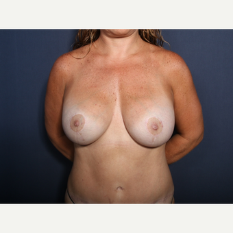 35-44 year old woman treated with Breast Lift with Implants (view 1 of 2) after 3406005
