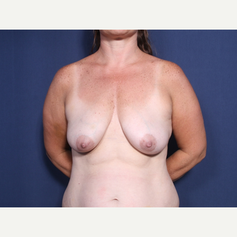 35-44 year old woman treated with Breast Lift with Implants (view 1 of 2) before 3406005