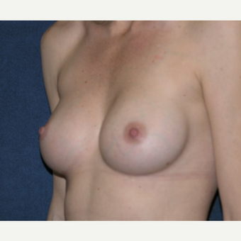 35-44 year old woman treated with Nipple Surgery after 3455385