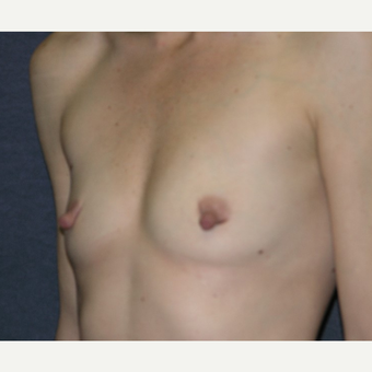 35-44 year old woman treated with Nipple Surgery before 3455385