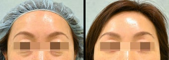 Lower Eyelid(Blepharoplasty) Surgery before 656881