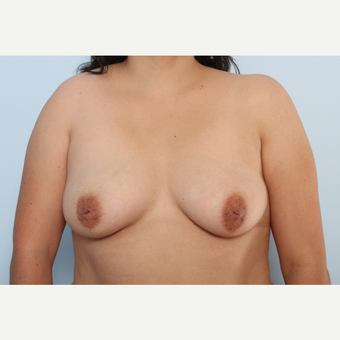 Breast Augmentation before 3340001