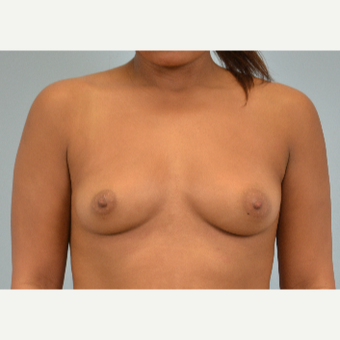18-24 year old woman treated with Breast Fat Transfer before 3432047