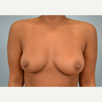 18-24 year old woman treated with Breast Fat Transfer after 3432047