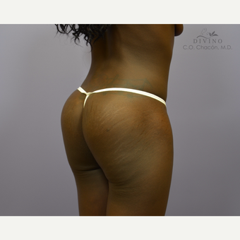 18-24 year old woman treated with Butt Augmentation after 3421191
